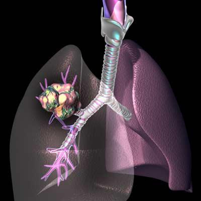 20130218140011-cancer-pulmon.jpg